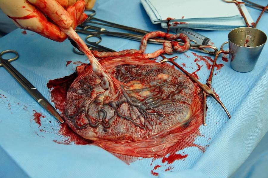 De placenta na de nageboorte