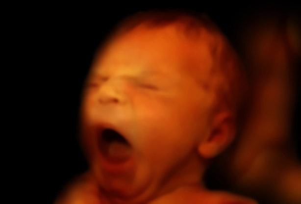 gewicht baby 32 weken zwanger