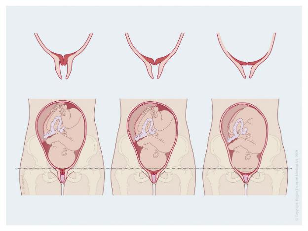 Pijn bevalling
