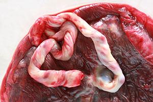 De placenta en navelstreng buiten de baarmoeder