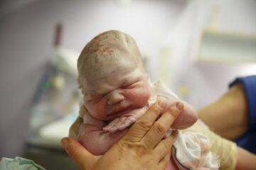 Pasgeboren nog verfrommelde baby, bedekt met vernix