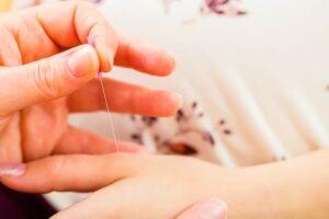 acupunctuur bij kinderwens en zwangerschap