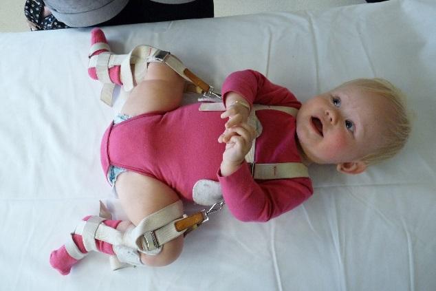 Kindje dat pavlik-bandage draagt ter behandeling van heupysplasie