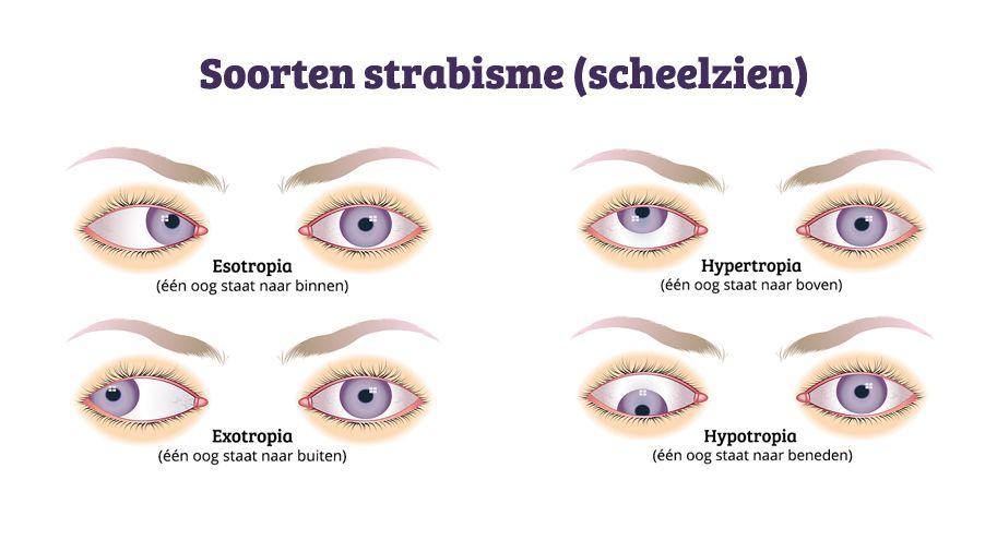 Soorten strabisme, scheelzien, loensen NL-naast elkaar1