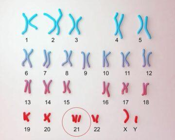 Overzicht chromosomen bij het Syndroom van Down